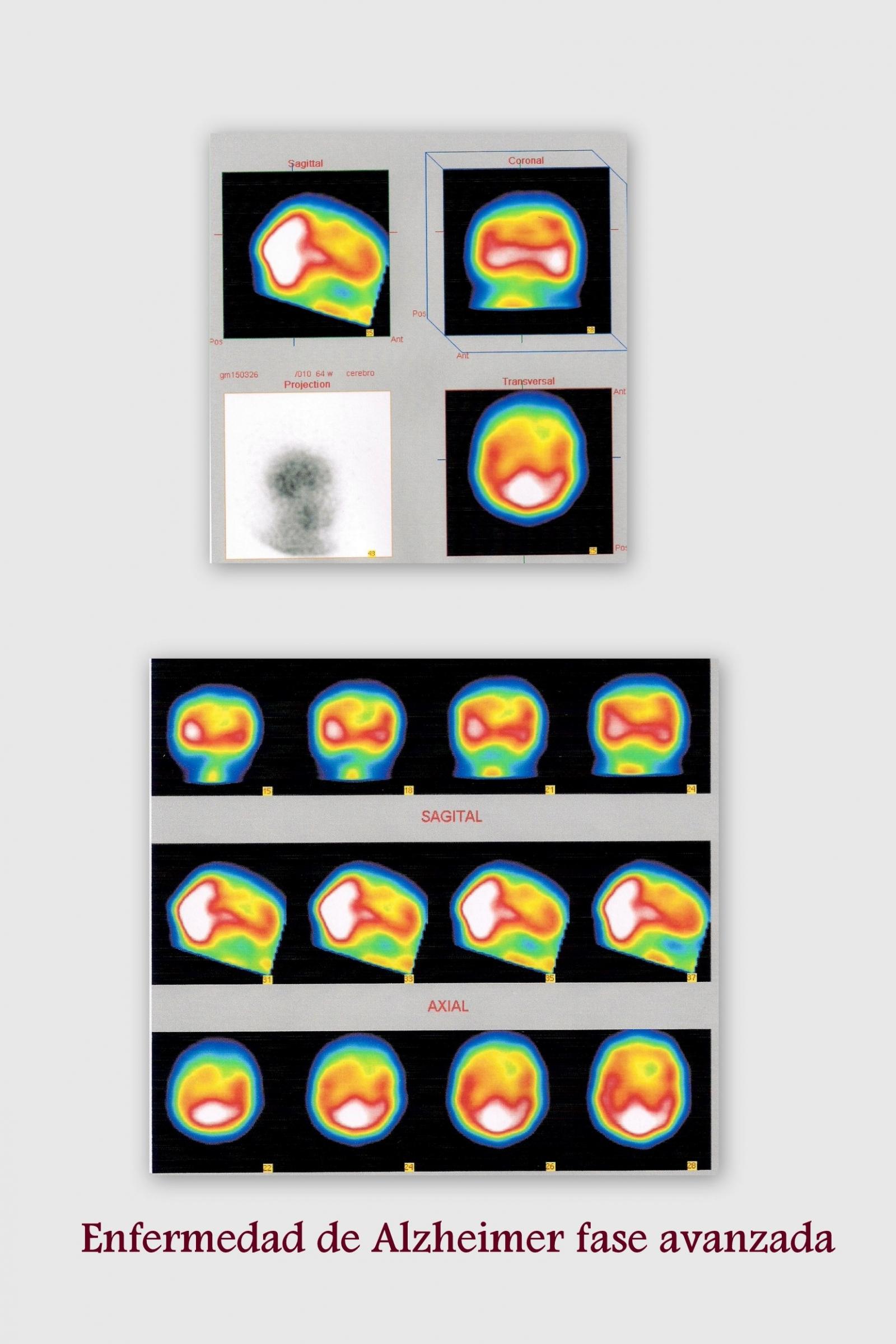 Alzheimer fase avanza